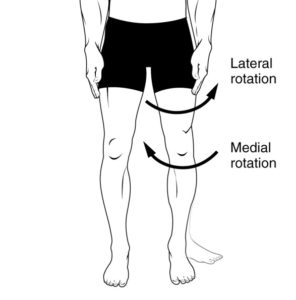 Illustration of In The Knee And Lower Thigh Area, There Are White Hinged Stripes, Are Those Varicose Veins?