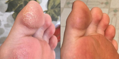 Illustration of How To Deal With Very Dry Foot Skin?