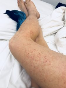 Illustration of Hives Never Heal?