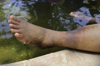Illustration of The Cause Of Foot Skin Becomes Blackish?