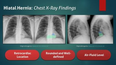 Illustration of Relationship Of Stomach Acid With Chest X-ray Results?