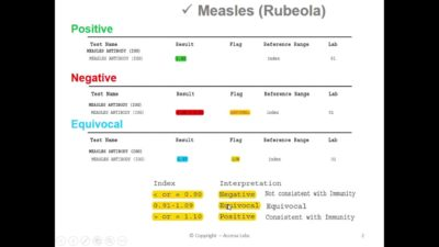 Illustration of Toxo And Rubella Test Results?