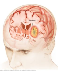 Illustration of The Origin Of A Brain Tumor And How To Avoid It?