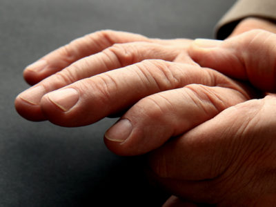 Illustration of Swollen Hands So That The Palm Is Difficult To Move?