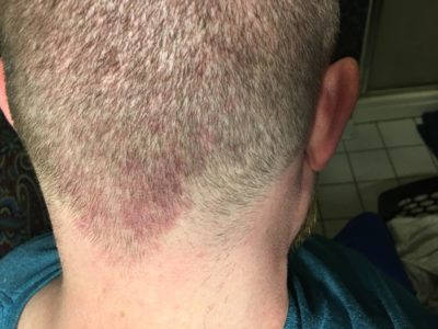 Illustration of The Back Of The Head Has A Reddish Mark Like A Salmon Patch?