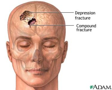 Illustration of What Is The Impact If The Forehead Fractures And A Broken Nose 7 Days Ago But Has Not Yet Been Operated On?