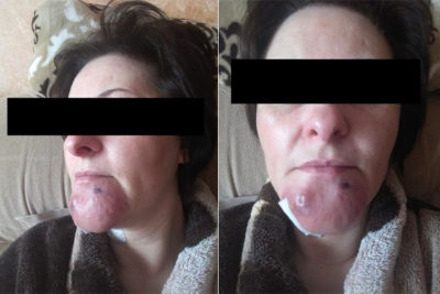 Illustration of The Cause Of Sores On The Chin Is Getting Bigger But Not Painful Or Sore?