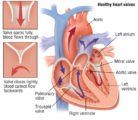 What Is The Next Treatment If The Left Heart Valve In The Womb 28 Weeks Has Not Closed?