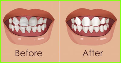 Illustration of Can Your Teeth Be Shaken?