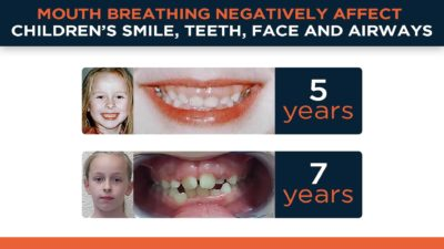 Illustration of Is It True That The Breath Released From The Mouth And Nose Of TB Sufferers Is Contagious?