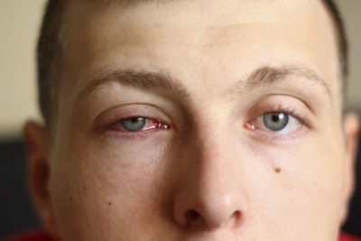 Illustration of What Causes Swelling Of The Red Eyelids And Facial Skin?