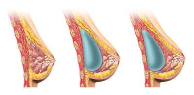 Illustration of Breasts Hardened After Breast Milk What Should Surgery?