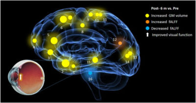 Illustration of Can Neurological Disorders After Cataract Surgery Affect One's Cognitive Abilities?