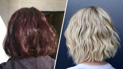 Illustration of Why Does The Hair Color Change After Undergoing Treatment With A Neurologist?