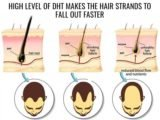 Is Hair Loss Due To The Hormone DHT Can Be Overcome With Minoxidil?