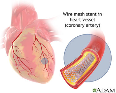 Illustration of Please Explain About The Ring Installation For Coronary Heart Disease?