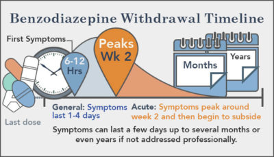 Illustration of Can Withdrawal Symptoms Such As Nausea, Anxiety, Insomnia Go Away?