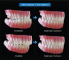 Overcoming Upper Teeth That Are More Advanced Than Lower Teeth Accompanied By Several Cavities?