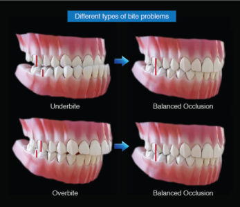 Illustration of Overcoming Upper Teeth That Are More Advanced Than Lower Teeth Accompanied By Several Cavities?