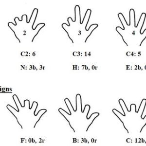 Illustration of Causes Of Shorter Index Finger On History Of Collision?