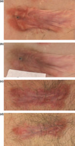Illustration of Can Keloid Injection Injections Affect Menstruation?