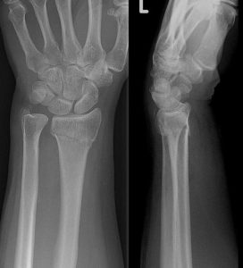 Illustration of X-ray Results Of Wrist Bones After Falling From The Motor?