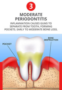 Illustration of The Gums Often Bleed And The Mouth Secretes A Yellowish-smelling Liquid During Sleep?