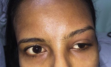 Illustration of Swollen Eyes After 1 Week Of TB Treatment?