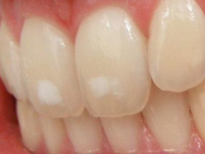 Illustration of White Lines On The Front Incisors Of Children?