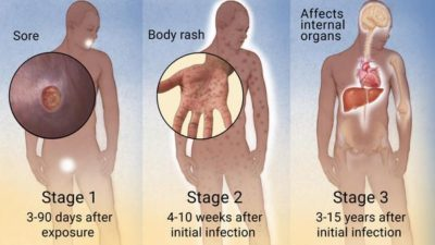 Illustration of Stages Of Syphilis And Its Treatment?