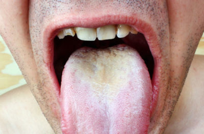Illustration of Thrush And Whitish Spots On The Lips, Tongue, And Palate Of The Baby 3 Months?