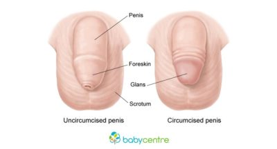 Illustration of Does A Baby Boy Who Is Circumcised Need Circumcision When He Is An Adult?