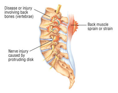 Illustration of Why Does The Backbone Hurt, Stiff And Lump?