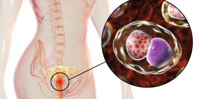 Illustration of Gonorrhea That Does Not Heal After Previous Gonorrhea Treatment Is Incomplete?