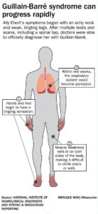Illustration of Respiratory Disorders In People With GBS?