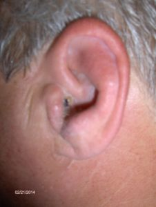 Illustration of Ear Pain, Swelling, And Redness?