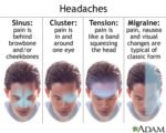 How To Deal With Headaches On The Forehead?