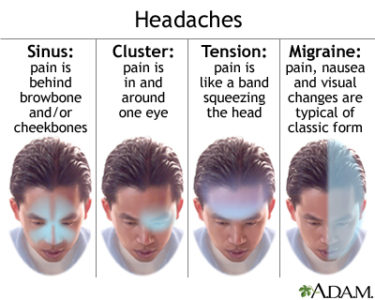 Illustration of How To Deal With Headaches On The Forehead?