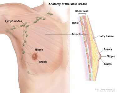 Illustration of A Small Lump In The Nipple Of A Man's Breast?