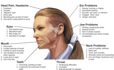 Illustration of Left Migraine And Aches In The Neck And Back?