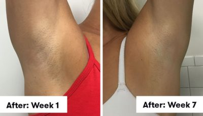 Illustration of Armpits Often Get Sick After FAM Surgery?