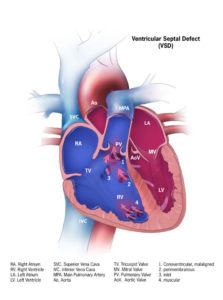 Illustration of How To Deal With 4-5 Mm VSD In An Adult Heart?