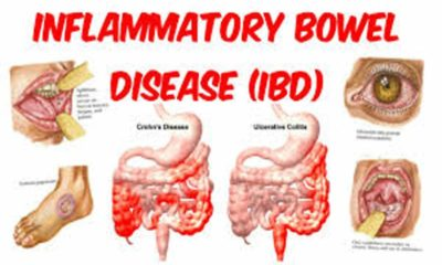 Illustration of Does Inflammatory Bowel Disease Have To Be Operated On?