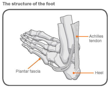 Illustration of Stiff To Difficult Activities In The Hands And Instep Areas?
