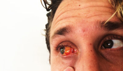 Illustration of Still Feeling Pain In The Stitches Used In Pterygium Surgery?