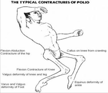 Illustration of Polio Infection That Occurs In Pregnant Women?