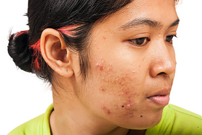 Illustration of Can I Take Clindamycin To Treat Severe Acne?