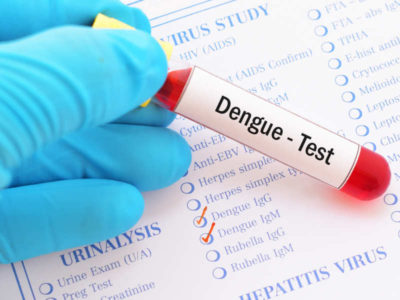 Illustration of Why Does The Lab Have Positive Results From Dengue Fever But Still Look Fit And Healthy?