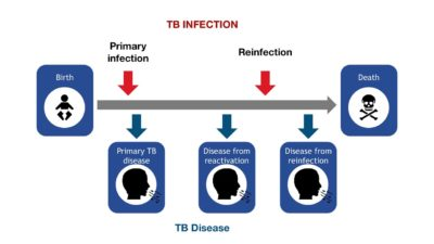 Illustration of Is Chest Pain An Effect Of Tb MDR Treatment?