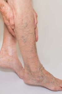 Illustration of How Do You Get Rid Of Varicose Veins At The Ankles?